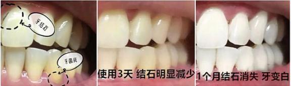 牙黄口臭?不要只是傻傻的洗牙!用正确的方法让你的牙齿变白,口气清新。  洗牙可以美白牙齿吗 牙齿有缝隙 怎样使牙齿变白 口腔医院挂号 洗牙对牙齿好吗 哪里可以买到活性炭 牙齿洗白 牙齿变白的方法 进口气动隔膜泵 口气重的原因 第11张