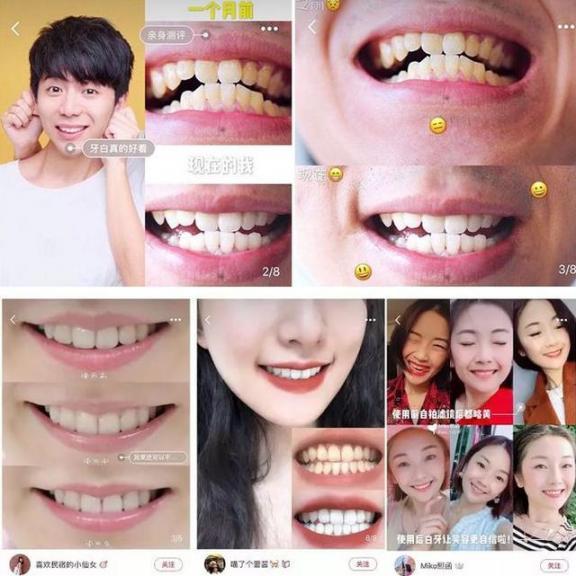 牙黄口臭?不要只是傻傻的洗牙!用正确的方法让你的牙齿变白,口气清新。  洗牙可以美白牙齿吗 牙齿有缝隙 怎样使牙齿变白 口腔医院挂号 洗牙对牙齿好吗 哪里可以买到活性炭 牙齿洗白 牙齿变白的方法 进口气动隔膜泵 口气重的原因 第14张