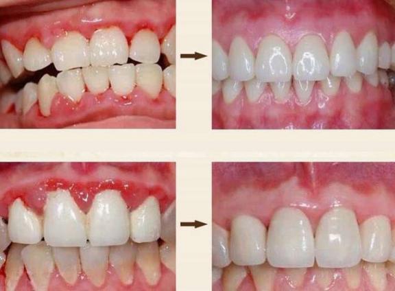 牙黄口臭?不要只是傻傻的洗牙!用正确的方法让你的牙齿变白,口气清新。  洗牙可以美白牙齿吗 牙齿有缝隙 怎样使牙齿变白 口腔医院挂号 洗牙对牙齿好吗 哪里可以买到活性炭 牙齿洗白 牙齿变白的方法 进口气动隔膜泵 口气重的原因 第26张
