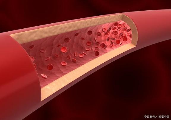 你怎么知道血管是否堵塞了?可能有一些迹象,你不重视。  心血管网 爱你的男人不亲你两个地方 穿到肉文里的作者你伤不起 腿上毛孔堵塞 你为什么不上线 心脑血管治疗仪 脸上毛孔堵塞怎么办 输卵管堵塞会排卵吗 血管瘤治疗方法 第1张