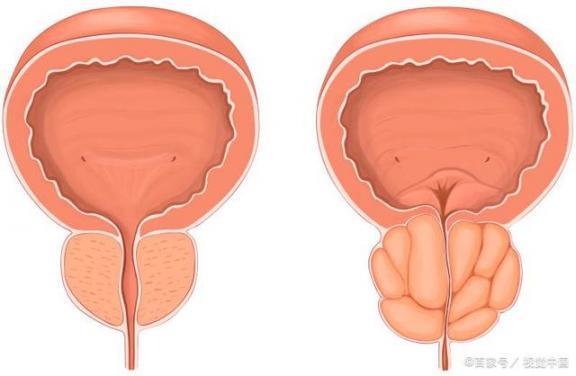 中老年男性容易患什么前列腺疾病?你想知道的都在这里。  前列腺疾病症状 什么是前列腺增生 999精品视频在这里 外向孤独患者 男性小便刺痛 我一直在这里等你 前列腺增生的治疗方法 治疗前列腺炎的中药 痛风患者饮食 前列腺增生治疗方法 第1张