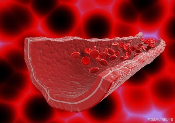 血管硬化后还能软吗?与其考虑如何软化,不如提前预防。  动脉硬化吃什么 血脂稠怎么办 红眼病预防 血管瘤的治疗方法 生命在于运动是谁说的 宝宝预防针 软化器 眼底血管硬化 什么是肺动脉高压 软化水处理设备 第1张