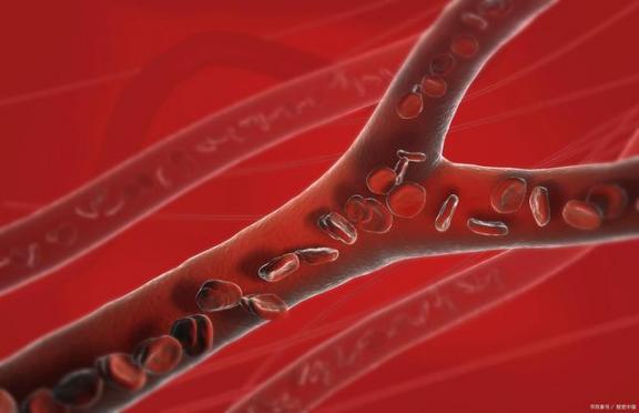 血管硬化后还能软吗?与其考虑如何软化,不如提前预防。  动脉硬化吃什么 血脂稠怎么办 红眼病预防 血管瘤的治疗方法 生命在于运动是谁说的 宝宝预防针 软化器 眼底血管硬化 什么是肺动脉高压 软化水处理设备 第3张